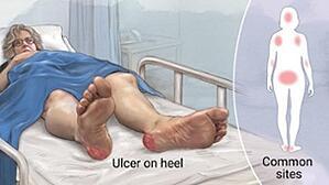 img-pressure-ulcer